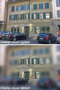 Glaucome champ visuel art optique payerne