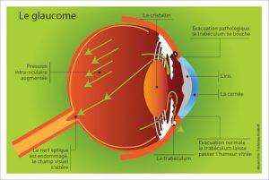 glaucome oeil art optique payerne schéma